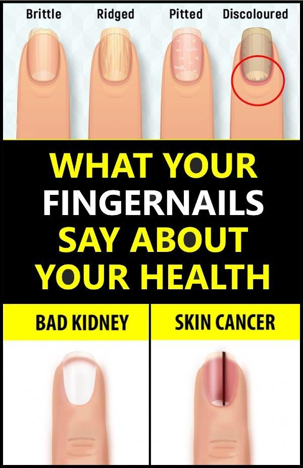What your fingernails say about health