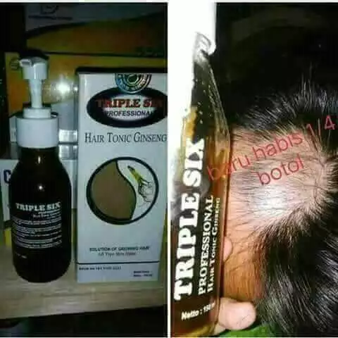 MANFAAT HAIR TONIC GINGSENG NASA