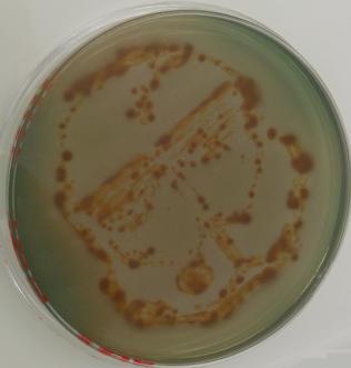 Escherichia coli sur Drigalski