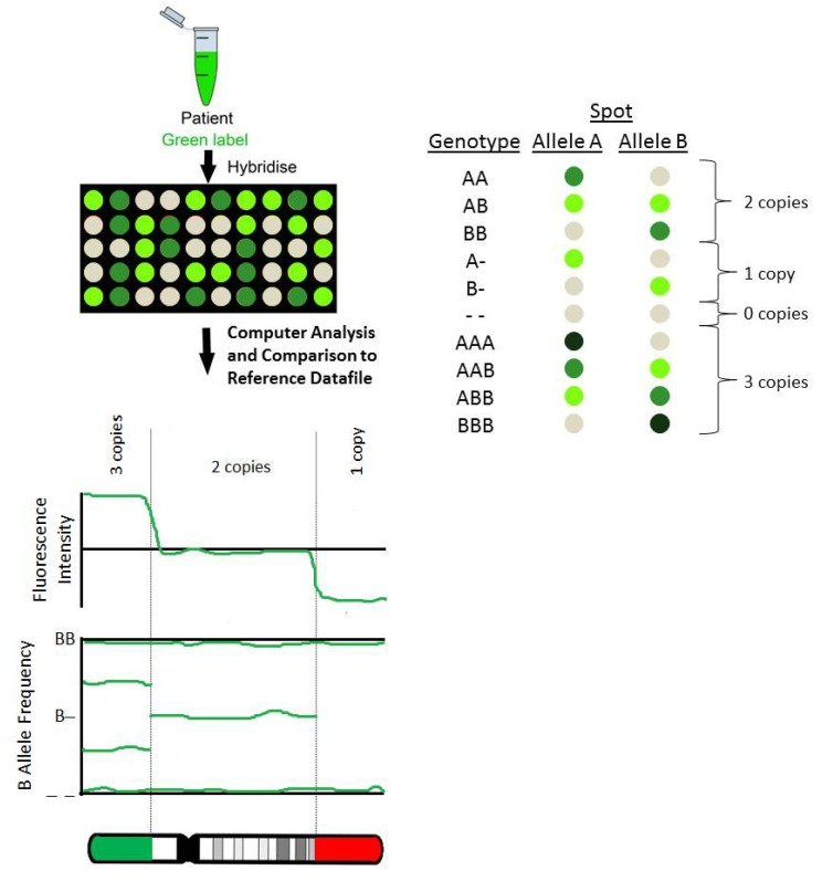 Single nucleotide polymorphism arrays for chromosomal microarray of the product of conception