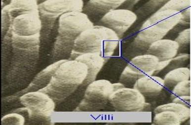 villi microscopic image.jpg