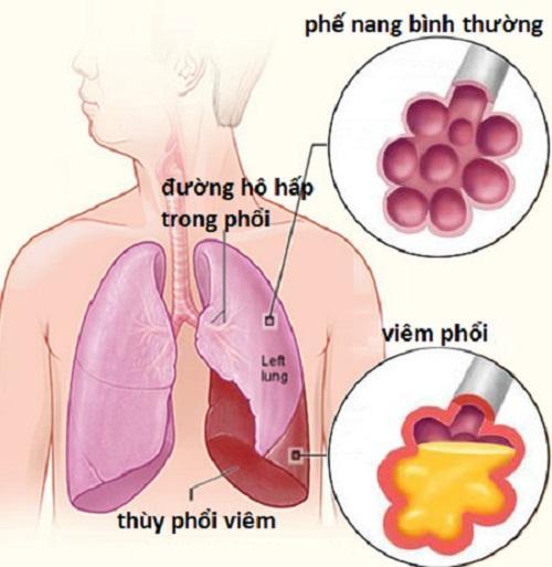 Kết quả hình ảnh cho phổi khi viêm