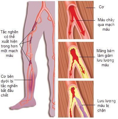 Kết quả hình ảnh cho bệnh động mạch ngoại biên