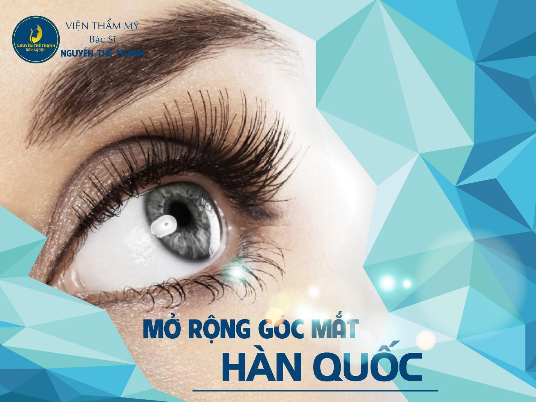 Mở rộng góc mắt Hàn Quốc - Mắt đẹp không lo sẹo xấu - Ảnh 1