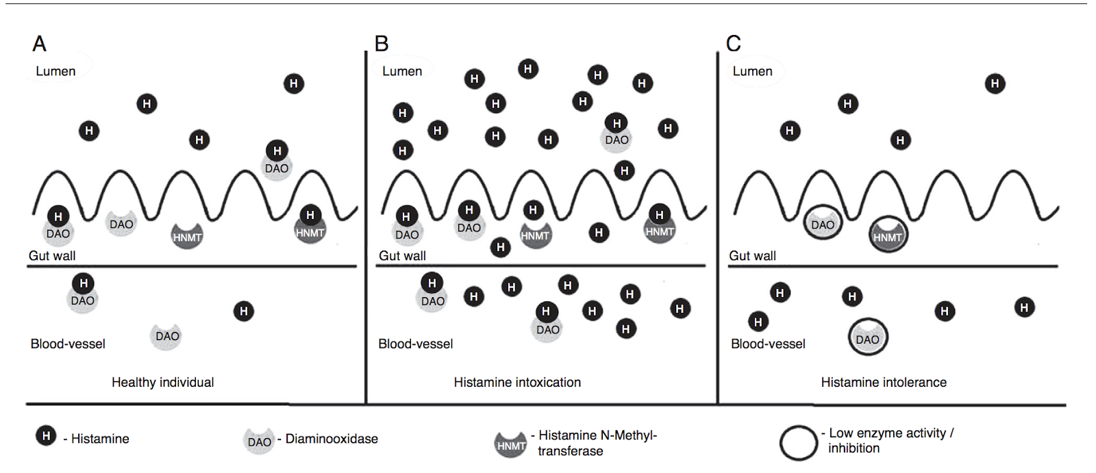 histamine intolerance and the gut