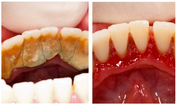 Lấy cao răng mất bao nhiêu thời gian thì hoàn thành? - Nha Khoa Bally 1
