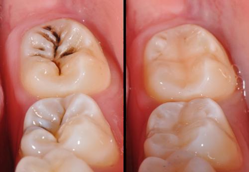 Trám răng cửa thưa có được không - hiệu quả thế nào?