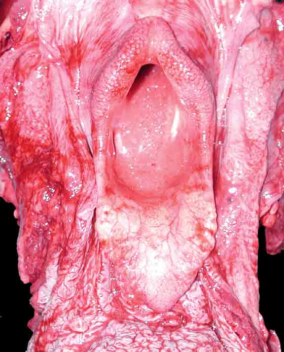 Acute pulmonary edema with blood tinged foam present at the level of the larynx.