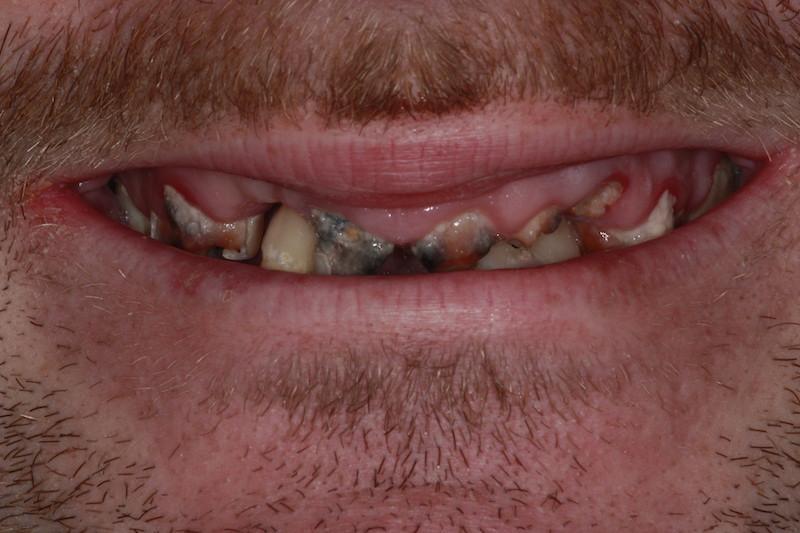 dentist-in-ashok-vihar