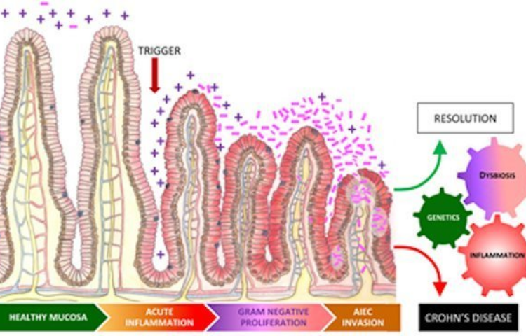 intestine issues and cannabis