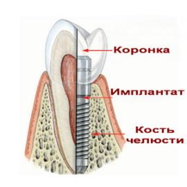 Коронка на импланте