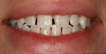 Bọc răng sứ cho răng thưa hiệu quả không? Giá bao nhiêu?