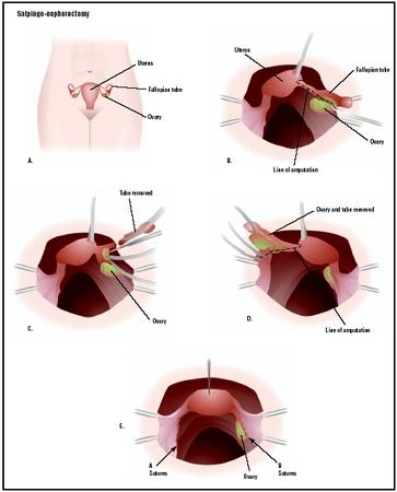 In a salpingo-oophorectomy, a woman's reproductive organs are accessed through an incision in the lower abdomen, or laparoscopically (A). Once the area is visualized, a diseased fallopian tube can be severed from the uterus and removed (B and C). The ovary can also be removed with the tube (D). The remaining structures are stitched (E), and the wound is closed. (Illustration by GGS Inc.)