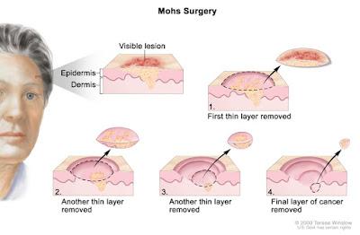 Skin Cancer Treatment ichhori.webp