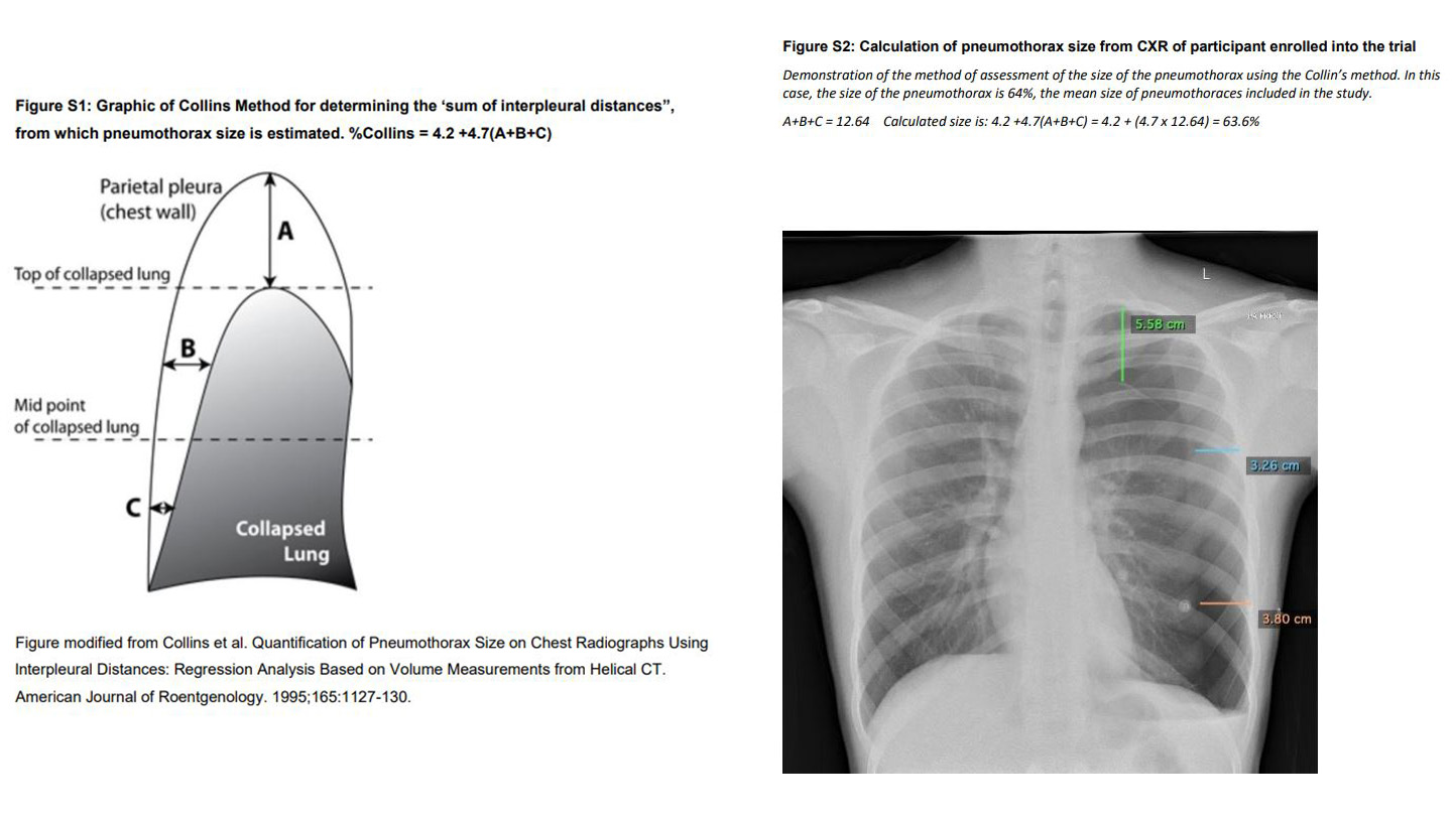 measurement of pneumothorax