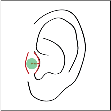tragus mark gems.png