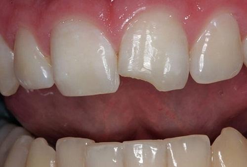 Khi nào thì nên trám răng cửa bị mẻ để có hiệu quả?