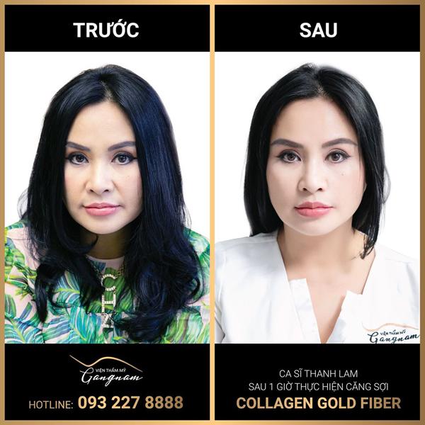 Sao hạng A cũng phải 'mê mệt' căng chỉ Collagen Gold Fiber - Ảnh 2