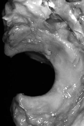 An abnormal development of the ulnar trochlear notch with an arc of curvature insufficient to encompass the humeral trochlea