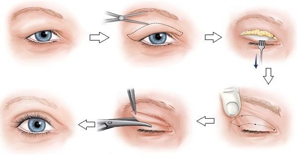 Phẫu thuật cắt da dư thừa mí mắt