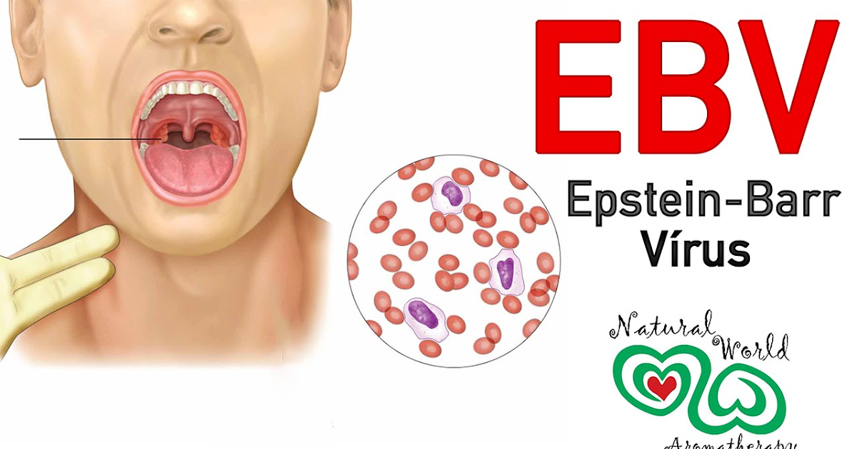 Hpv virus epstein barr. Acreditare RENAR