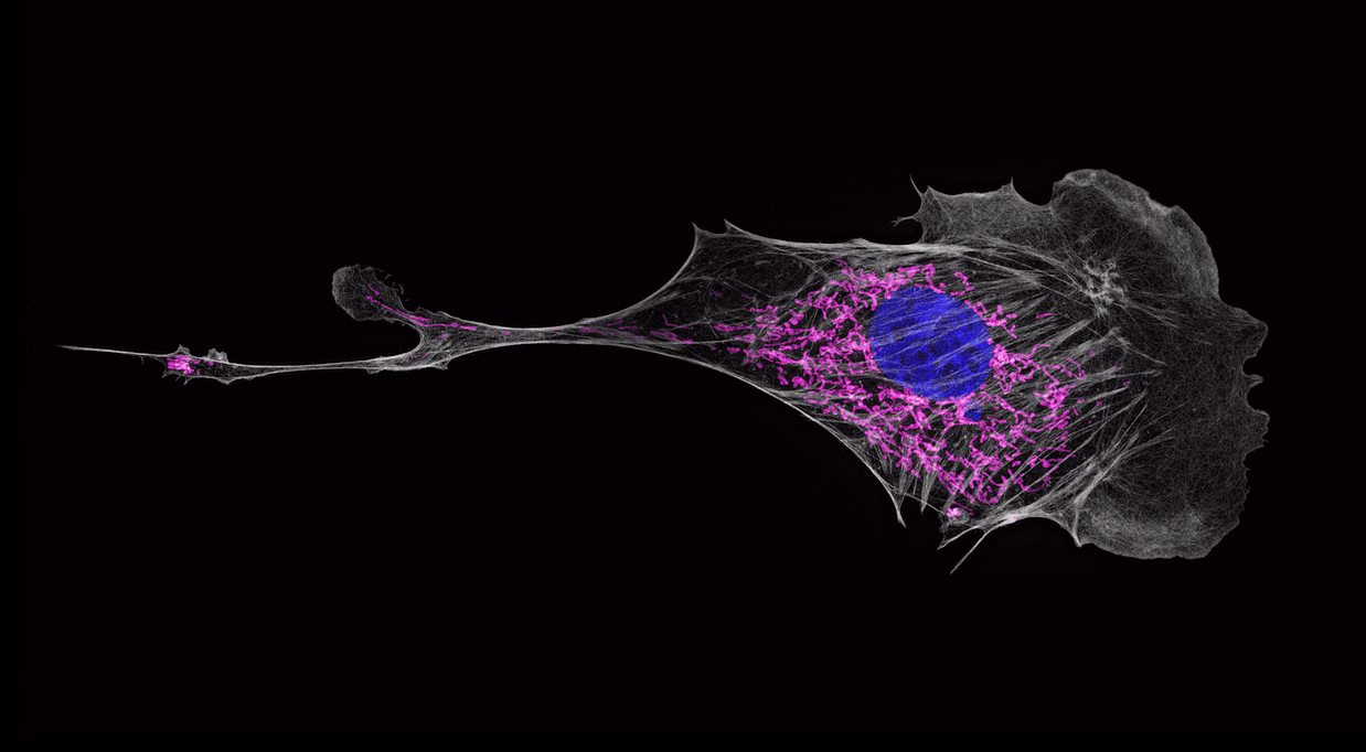Harvard Medical School used Dask to process high resolution 4-dimensional cellular imaging
