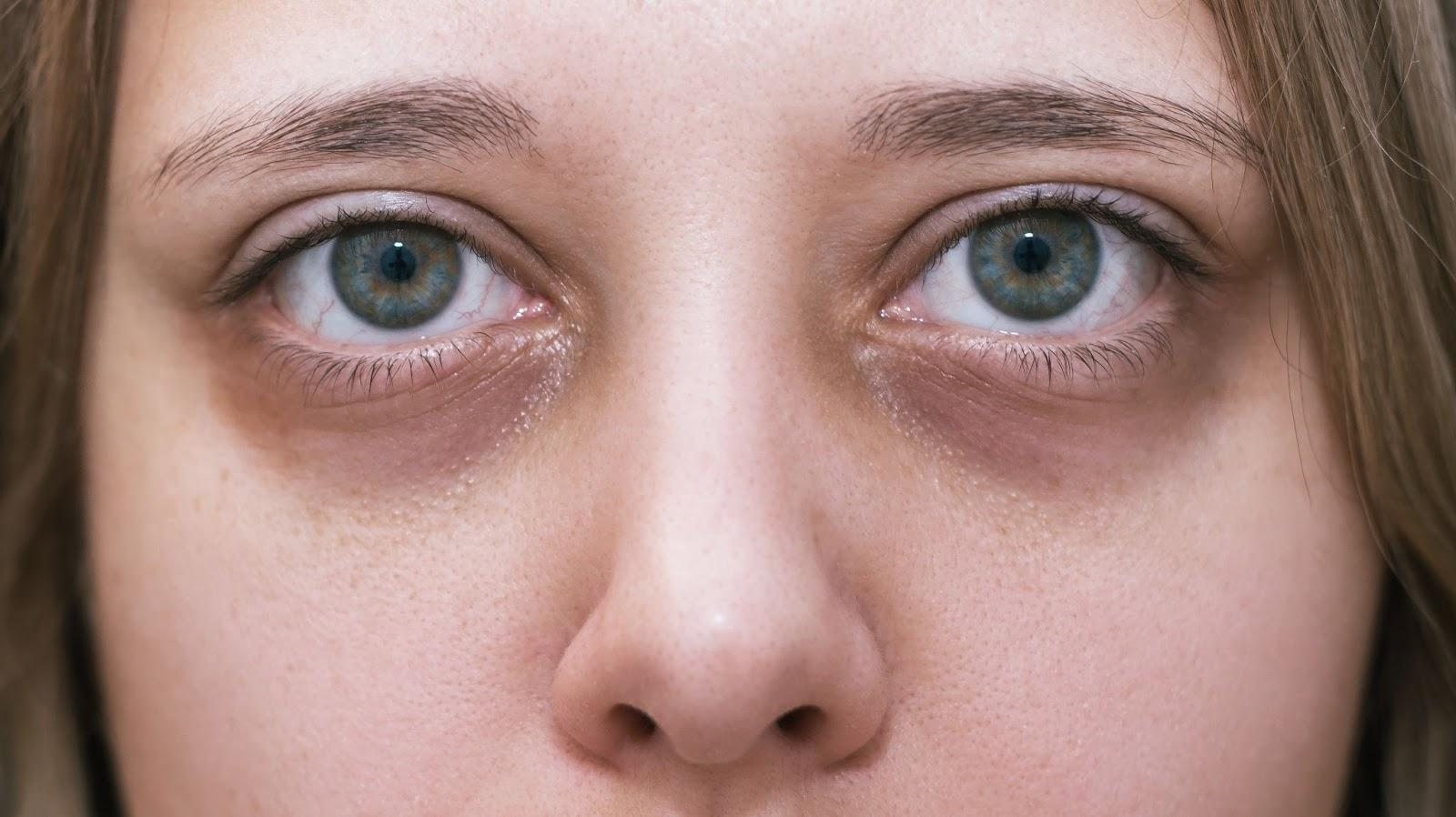 Why you should only use Eyelash serums with natural ingredients?