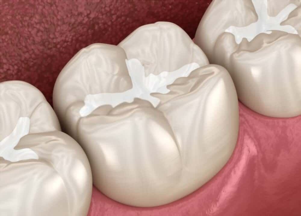 Dental Filling is a treatment option of chipped tooth, and cavity.