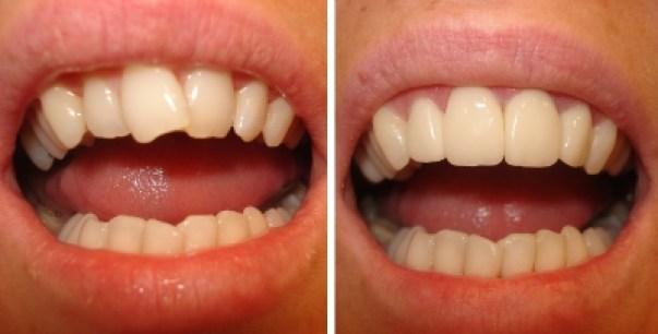 Bọc răng sứ nguyên hàm nên sử dụng khi nào? 1