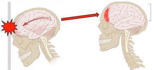 Resultado de imagem para trauma cranioencefálico