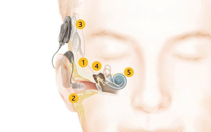 Como o Cochlear™ Hybrid™ Hearing funciona