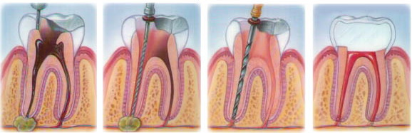 Процесс эндодонтического лечения