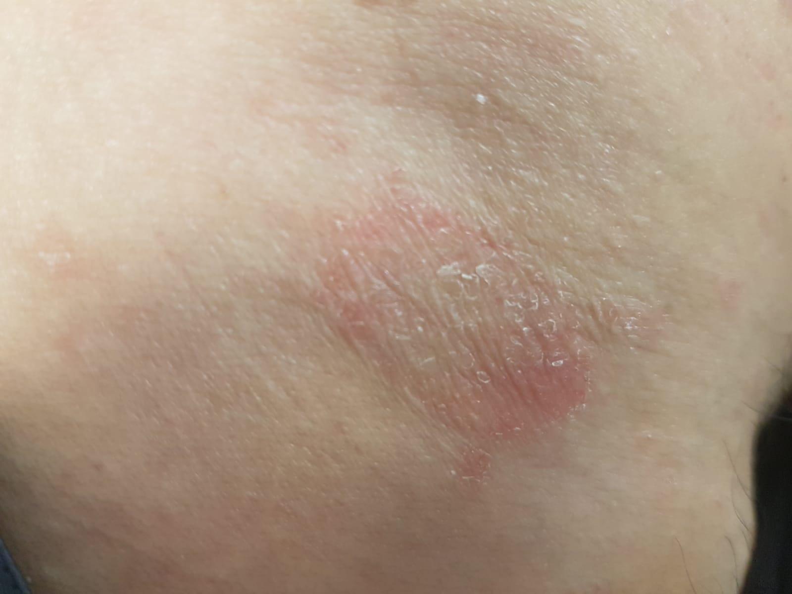 placa eritematosa y descamativa