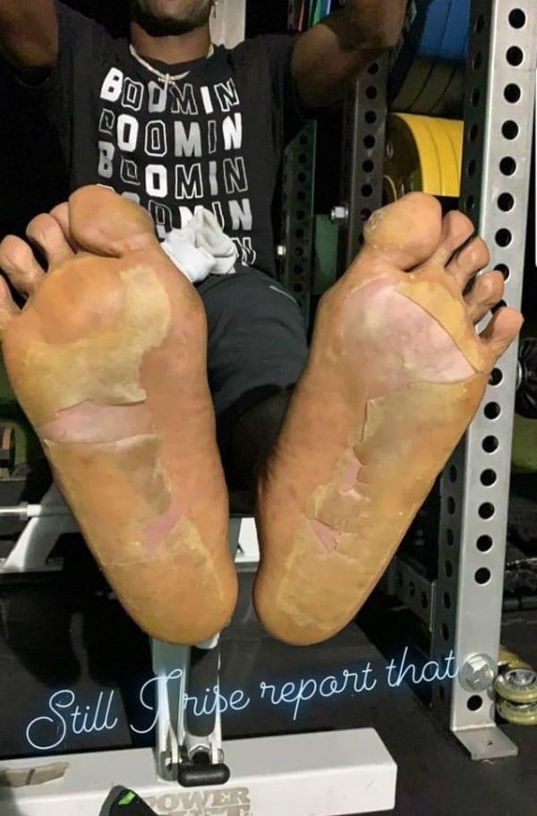 Antonio Brown's cryogenically-frozen feet.