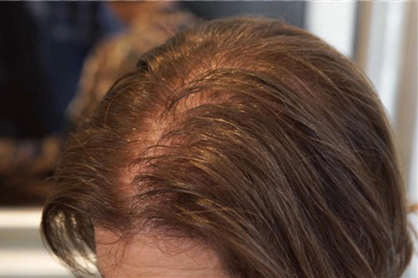 Bình thường bạn có thể mất 50-100 sợi tóc mỗi ngày, nếu số lượng nhiều hơn thì hãy bắt đầu quan tâm tới tóc hơn là vừa!