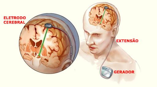 neuroestimulador