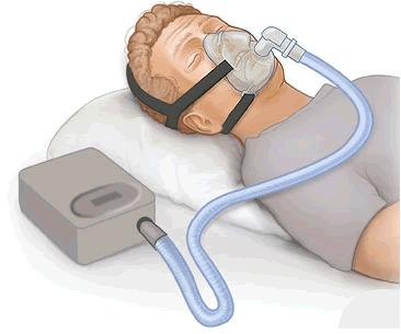 CPAP.png