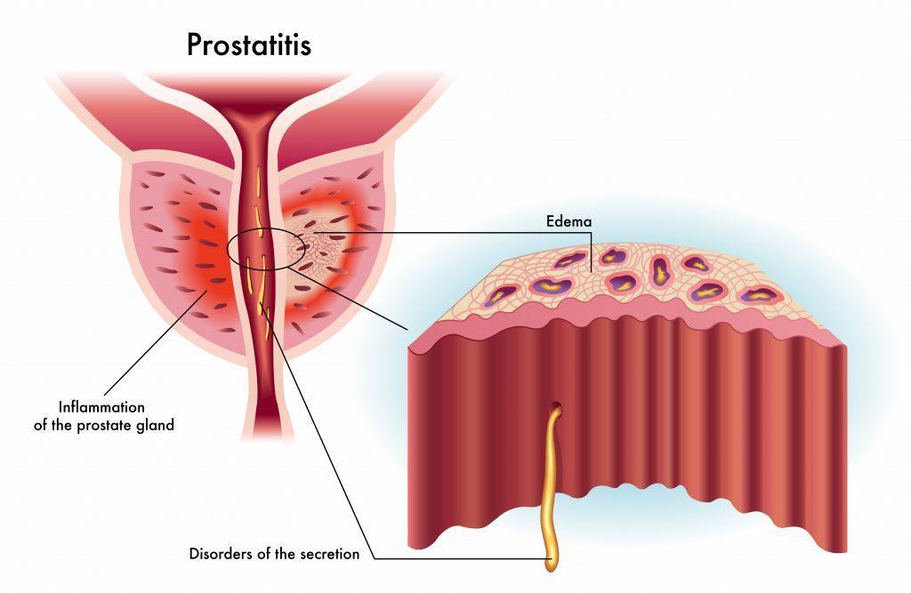 Hasil gambar untuk prostatitis