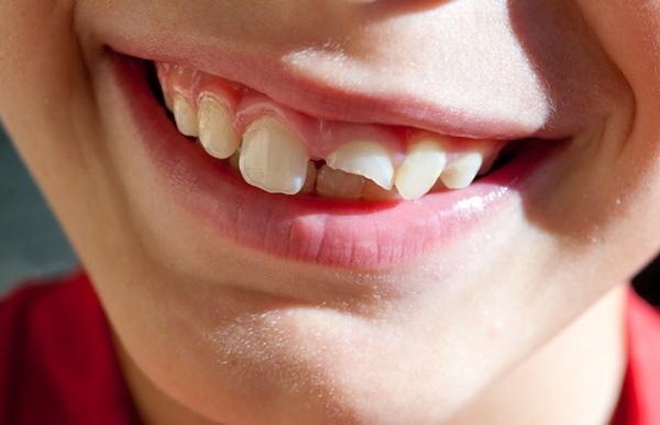 Trám răng cửa bị mẻ ở đâu uy tín và bảo đảm đẹp nhất?