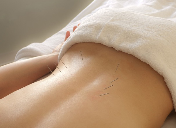 Acupuncture for lower back