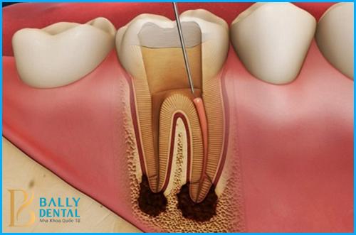 Có cần phải lấy tủy khi bọc răng sứ ? - Nha khoa Bally  1