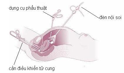 Phương pháp mổ nội soi u xơ tử cung