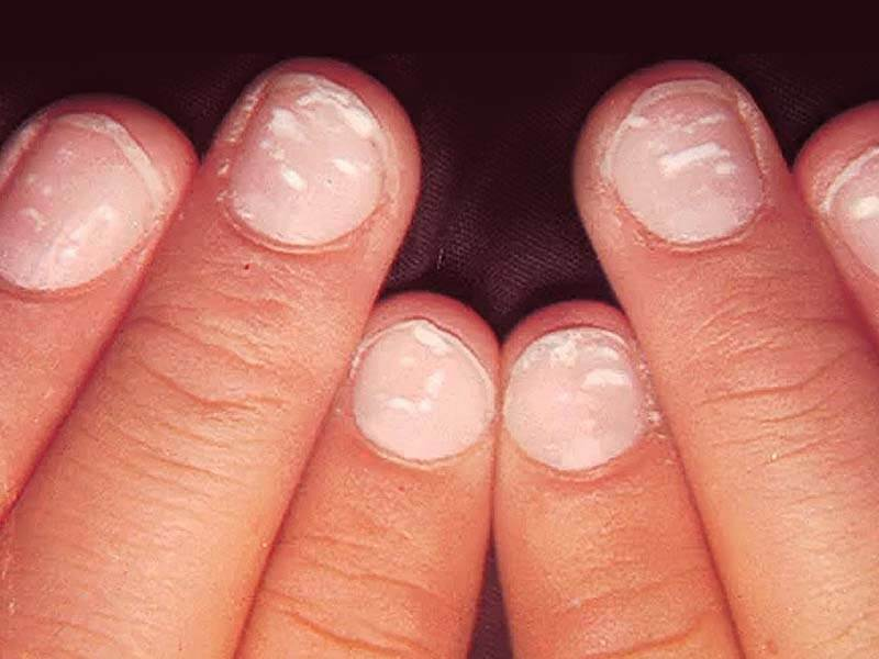 White spot in nails due to Calcium deficiency