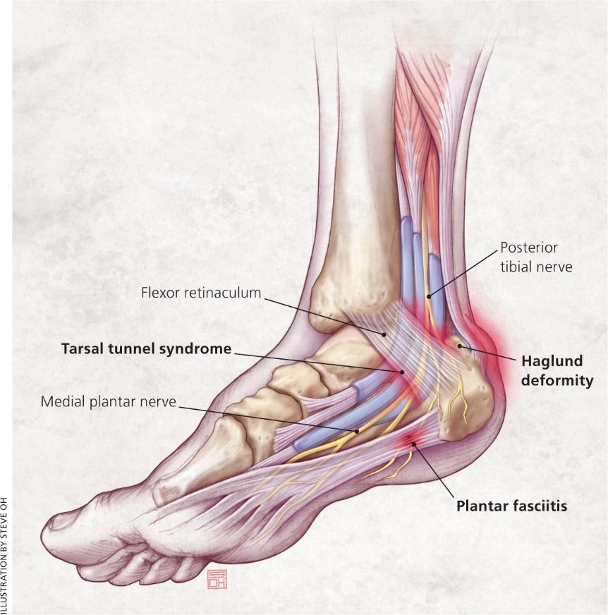 sakit tumit kaki