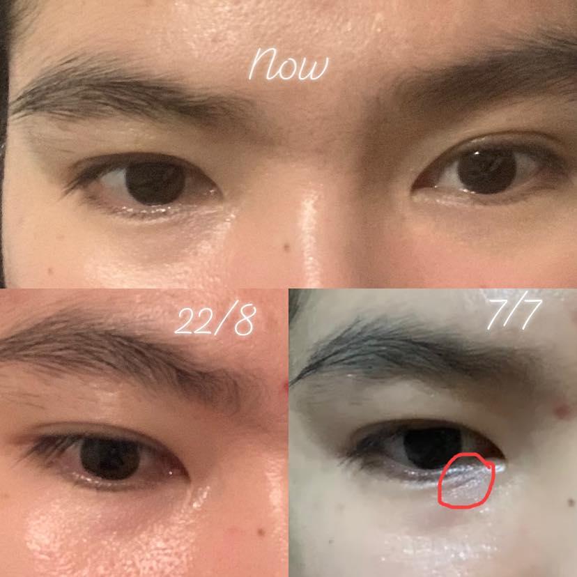 Kem trị nhăn mắt Shiseido
