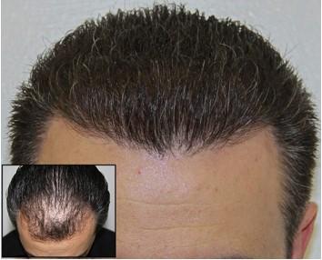 Optimum hair density