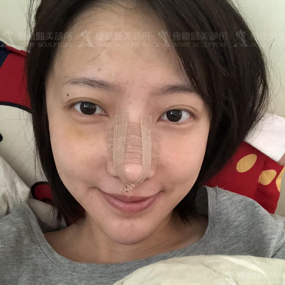結構式隆鼻術後恢復2