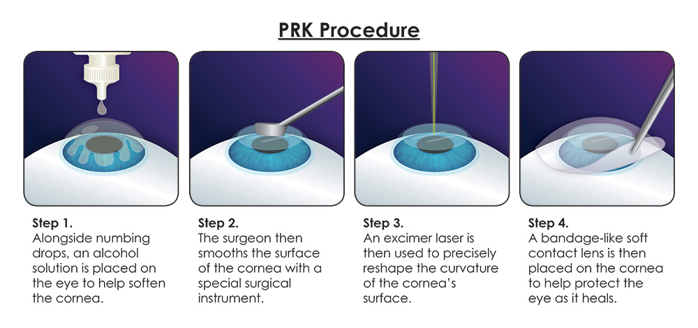 prk-procedure.jpg