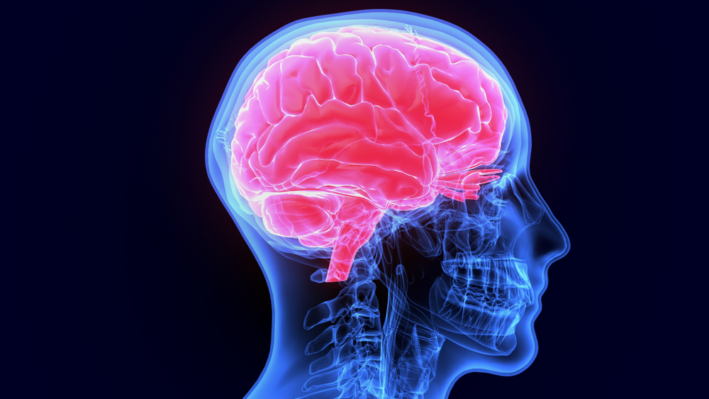 Células cancerígenas podem viajar pelo organismo até formar um tumor metastático no cérebro. (Fonte: Shutterstock)