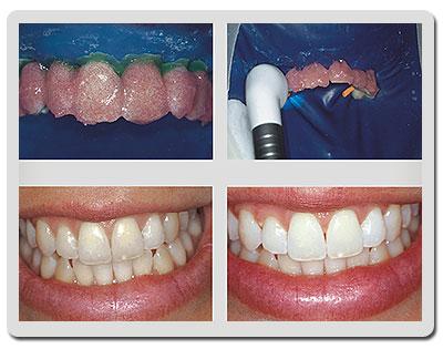 Clareamento Dental Caseiro Mulher Mae Da Beleza